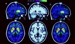 Enfermedades neurodegenerativas. El reto del siglo XXI